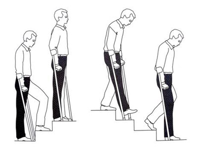 Лфк после эндопротезирования коленного сустава