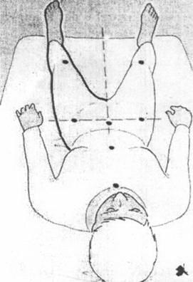 Комплекс упражнений для разработки тазобедренного сустава