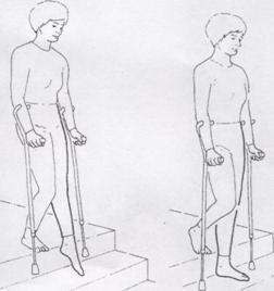 Упражнения для укрепления мышц тазобедренного сустава